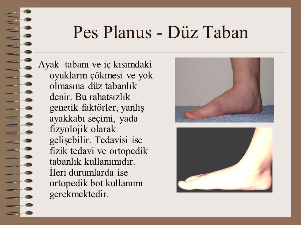Pes Planus - Düz Taban Ayak tabanı ve iç kısımdaki oyukların çökmesi ve yok olmasına düz tabanlık denir. Bu rahatsızlık genetik faktörler, yanlış ayak