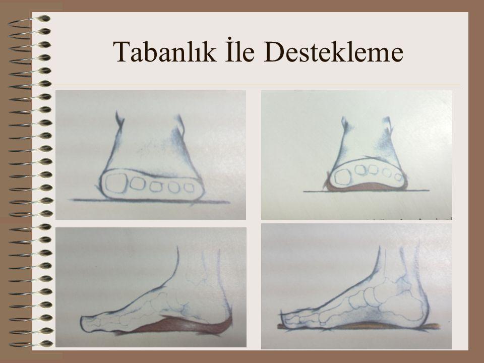 Epin Topuk – Topuk Çıkıntısı •Oluşma sebebi ayak tabanındaki aşırı zorlanmadır.