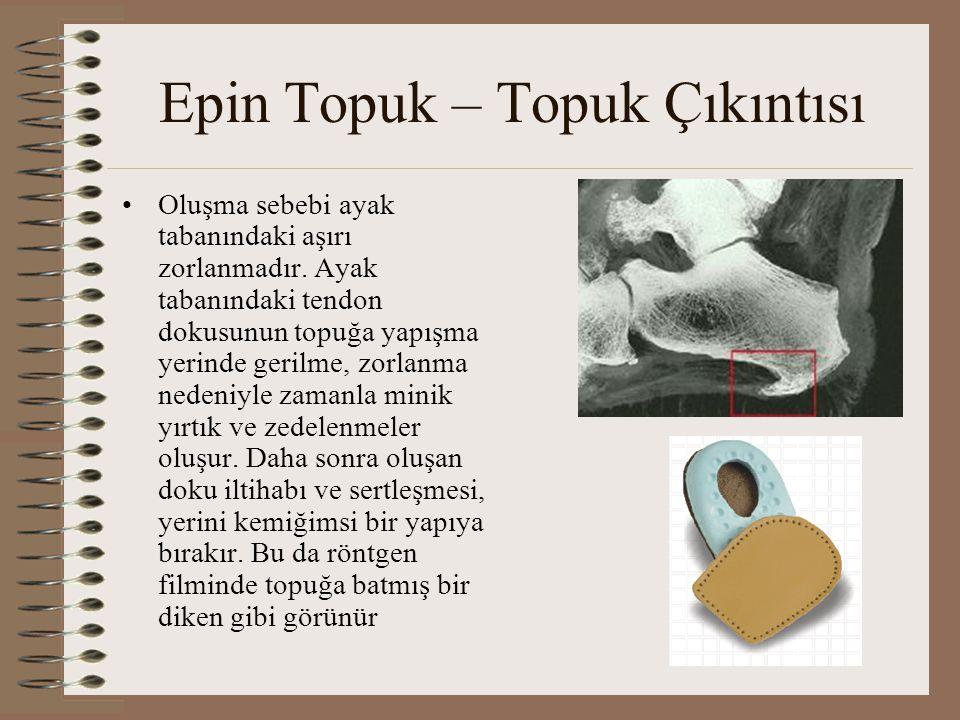 Epin Topuk – Topuk Çıkıntısı •Oluşma sebebi ayak tabanındaki aşırı zorlanmadır. Ayak tabanındaki tendon dokusunun topuğa yapışma yerinde gerilme, zorl