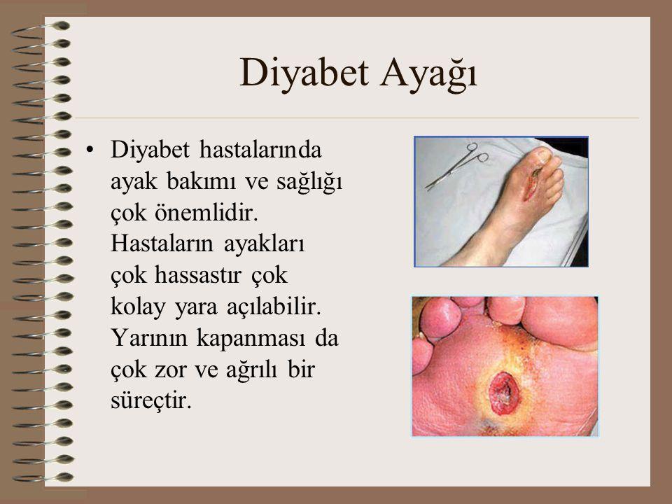Diyabet Ayağı •Diyabet hastalarında ayak bakımı ve sağlığı çok önemlidir. Hastaların ayakları çok hassastır çok kolay yara açılabilir. Yarının kapanma