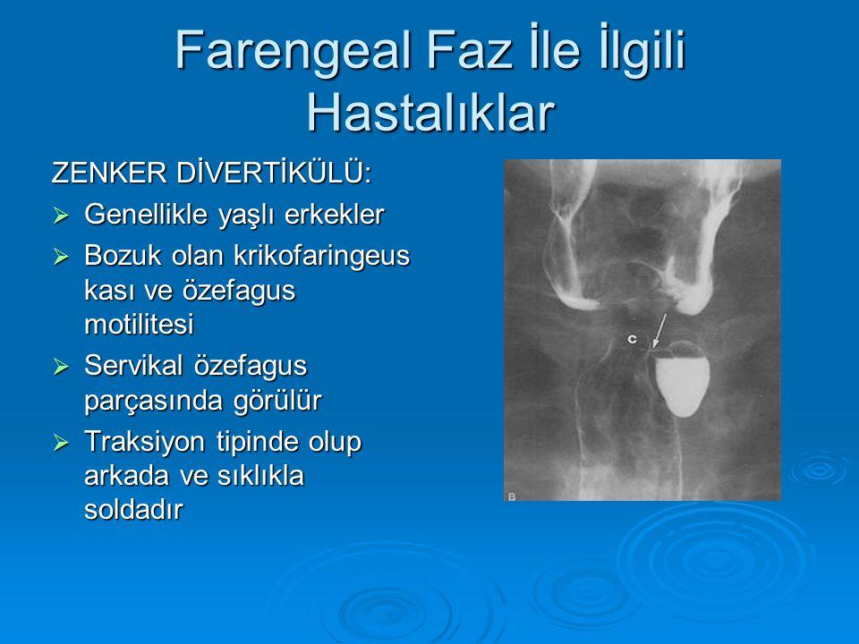 Farengeal Faz İle İlgili Hastalıklar ZENKER DİVERTİKÜLÜ:  Genellikle yaşlı erkekler  Bozuk olan krikofaringeus kası ve özefagus motilitesi  Servikal özefagus parçasında görülür  Traksiyon tipinde olup arkada ve sıklıkla soldadır