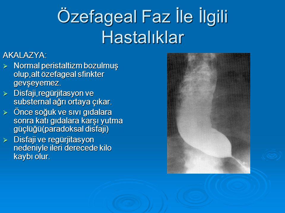 Özefageal Faz İle İlgili Hastalıklar AKALAZYA:  Normal peristaltizm bozulmuş olup,alt özefageal sfinkter gevşeyemez.