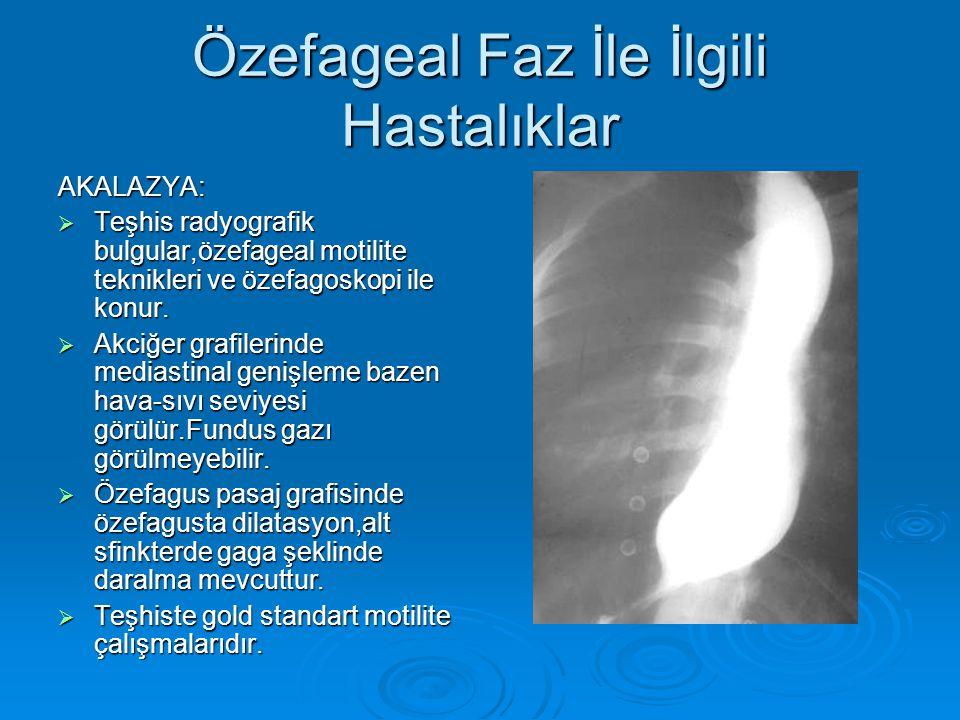 Özefageal Faz İle İlgili Hastalıklar AKALAZYA:  Teşhis radyografik bulgular,özefageal motilite teknikleri ve özefagoskopi ile konur.