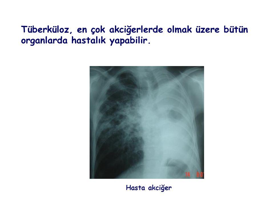 Tüberküloz, en çok akciğerlerde olmak üzere bütün organlarda hastalık yapabilir. Hasta akciğer