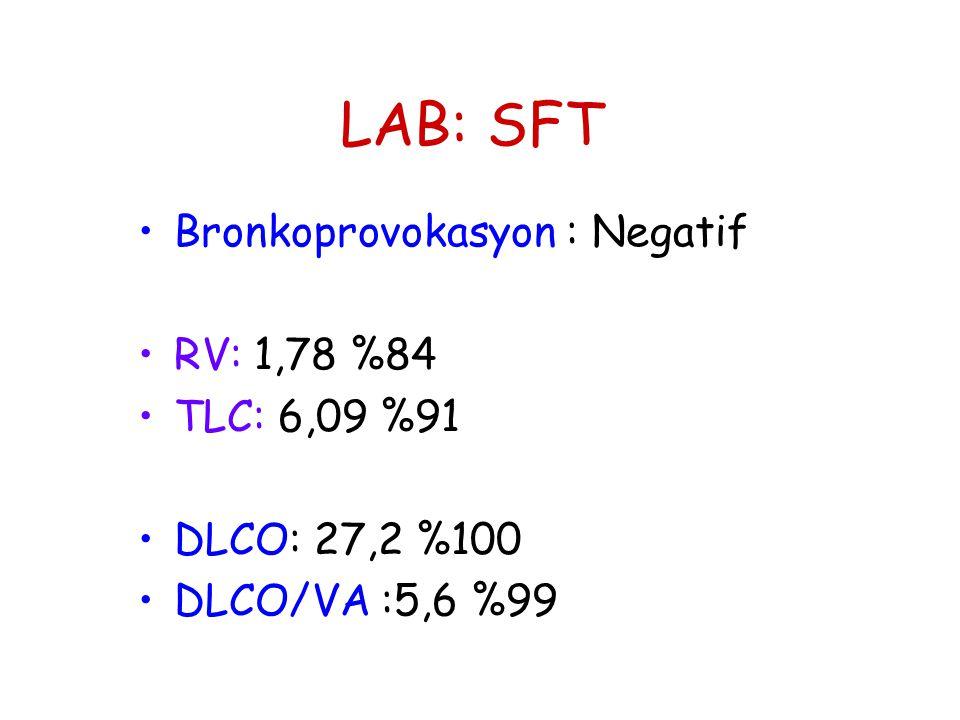 LAB: SFT •Bronkoprovokasyon : Negatif •RV: 1,78 %84 •TLC: 6,09 %91 •DLCO: 27,2 %100 •DLCO/VA :5,6 %99