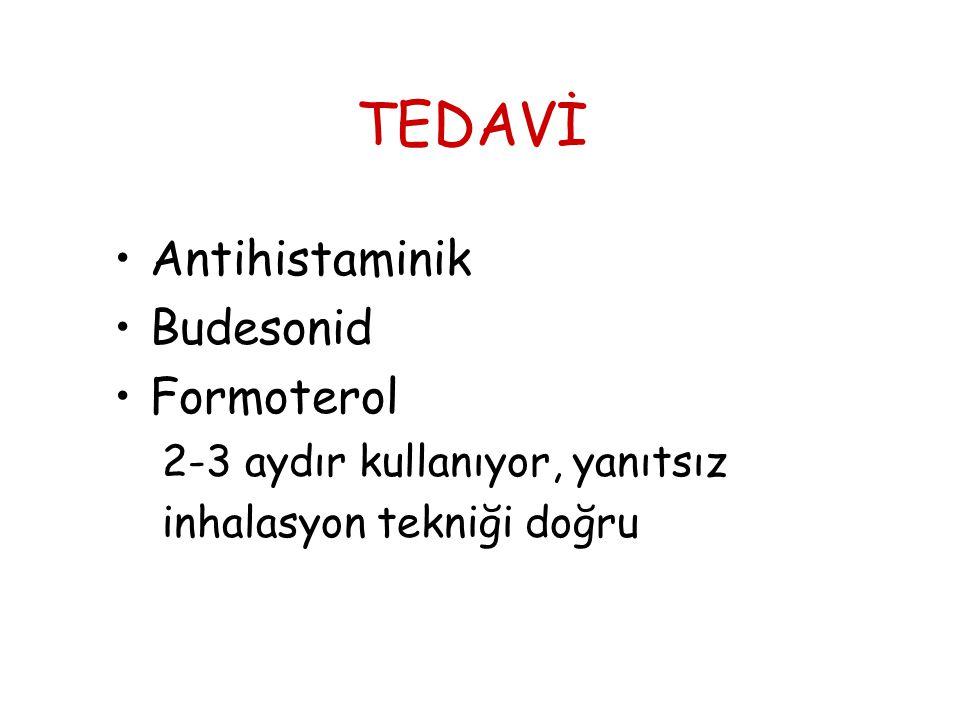 TEDAVİ •Antihistaminik •Budesonid •Formoterol 2-3 aydır kullanıyor, yanıtsız inhalasyon tekniği doğru