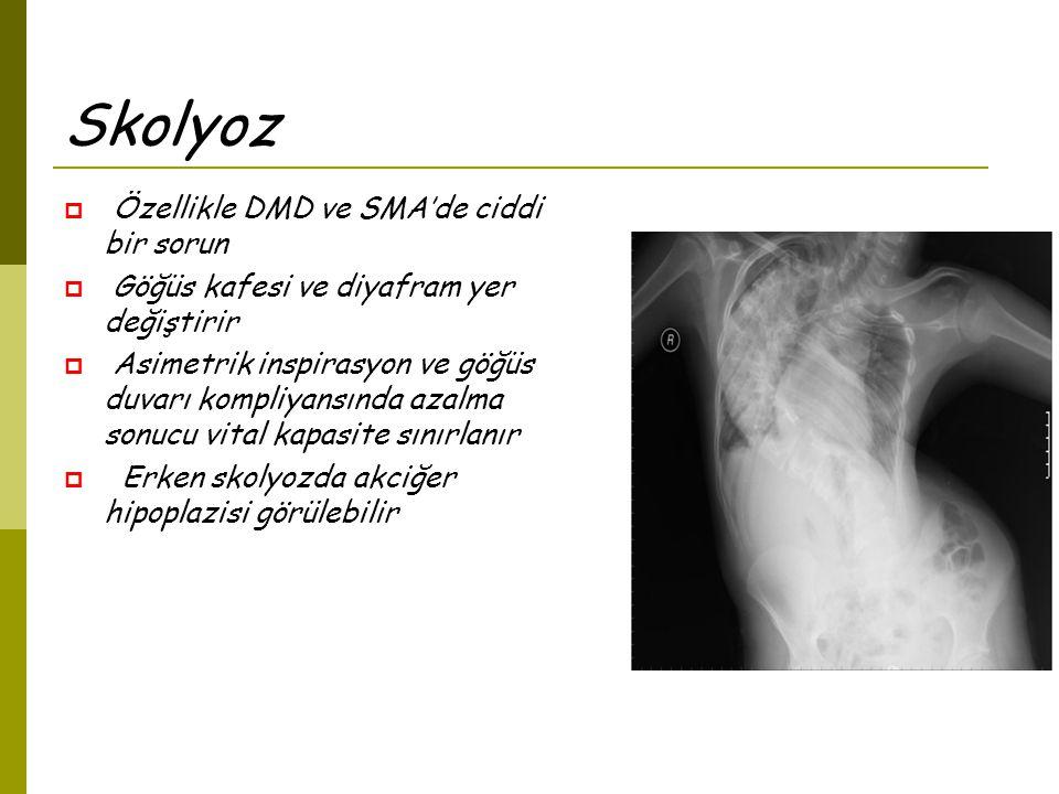Skolyoz  Özellikle DMD ve SMA'de ciddi bir sorun  Göğüs kafesi ve diyafram yer değiştirir  Asimetrik inspirasyon ve göğüs duvarı kompliyansında azalma sonucu vital kapasite sınırlanır  Erken skolyozda akciğer hipoplazisi görülebilir