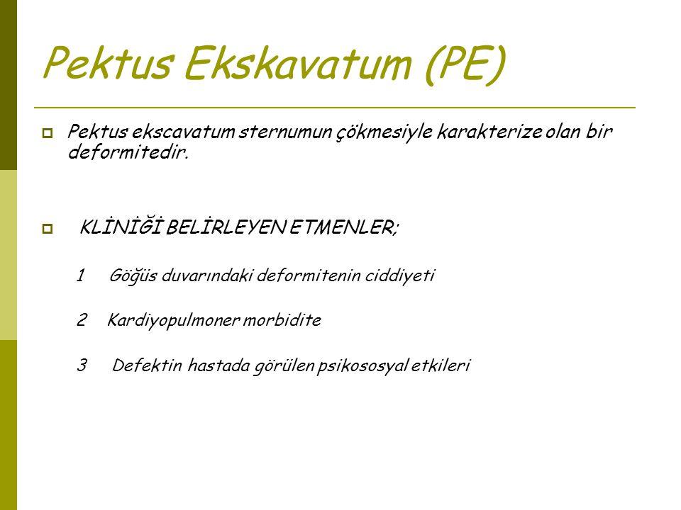Pektus Ekskavatum (PE)  Pektus ekscavatum sternumun çökmesiyle karakterize olan bir deformitedir.