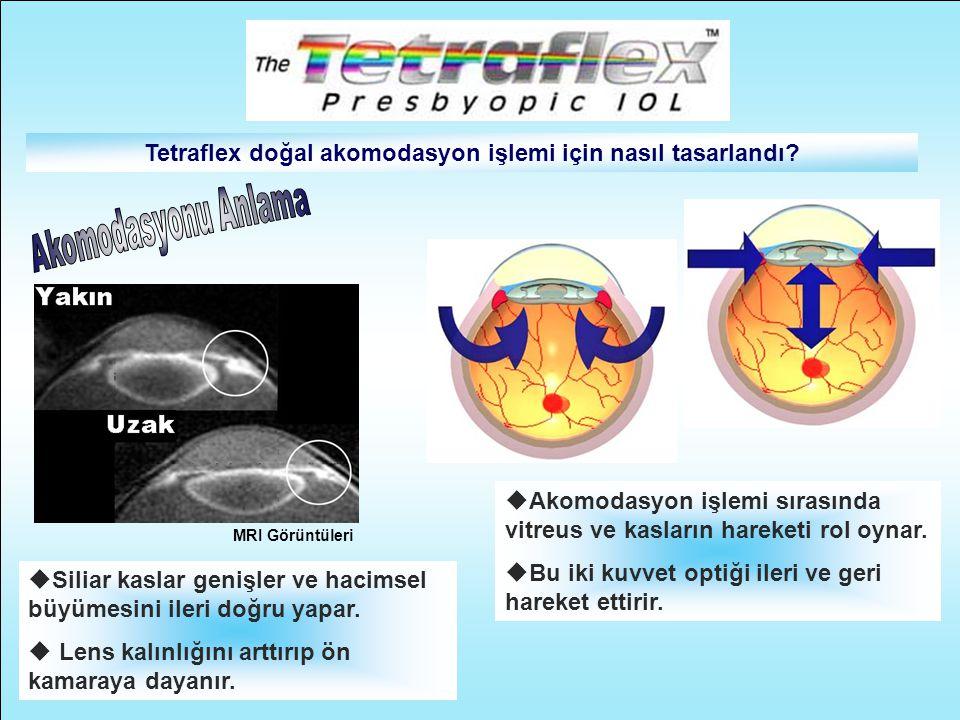 Tetraflex doğal akomodasyon işlemi için nasıl tasarlandı? MRI Görüntüleri  Siliar kaslar genişler ve hacimsel büyümesini ileri doğru yapar.  Lens ka