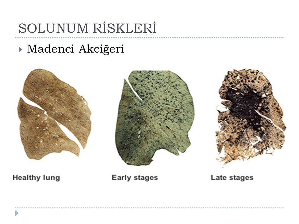  Madenci Akciğeri
