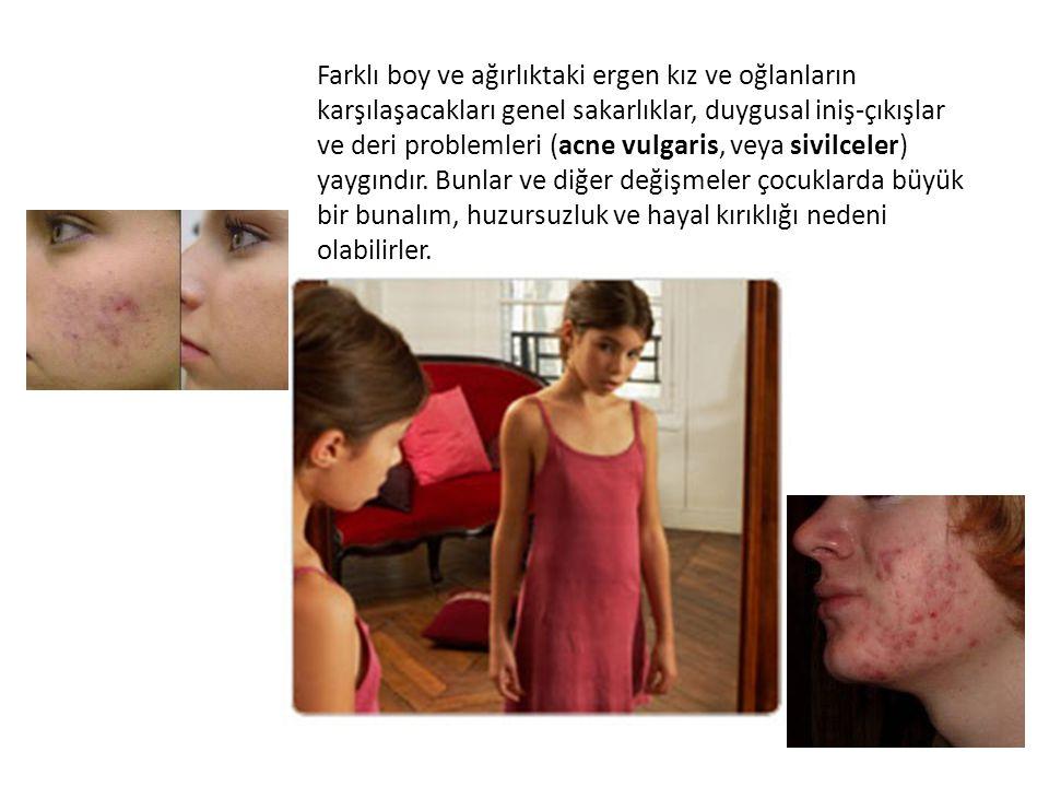 Farklı boy ve ağırlıktaki ergen kız ve oğlanların karşılaşacakları genel sakarlıklar, duygusal iniş-çıkışlar ve deri problemleri (acne vulgaris, veya