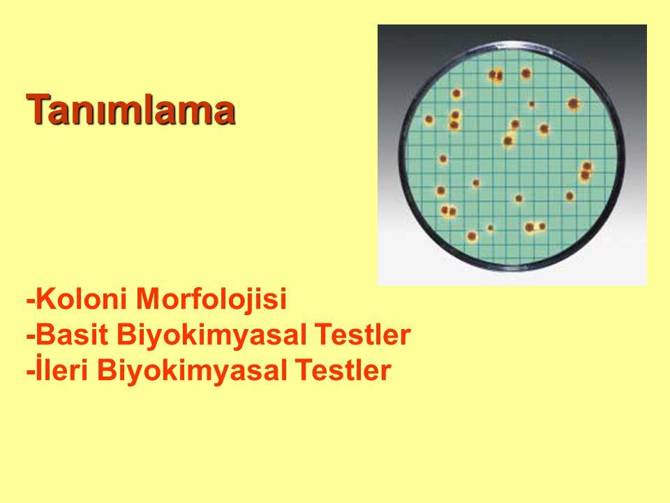 Tanımlama -Koloni Morfolojisi -Basit Biyokimyasal Testler -İleri Biyokimyasal Testler