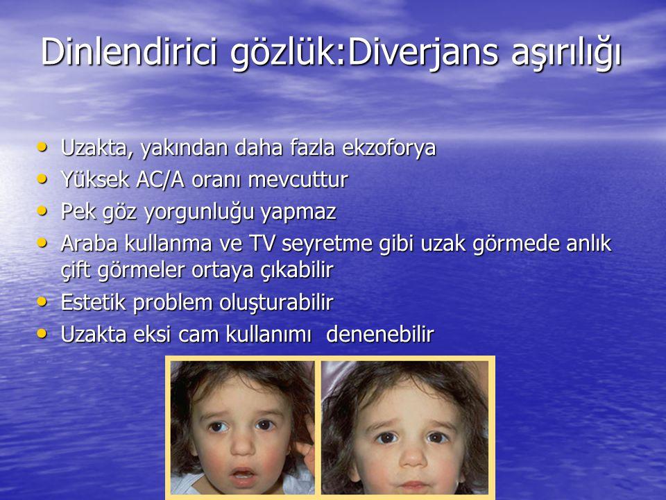 Dinlendirici gözlük:Diverjans aşırılığı Dinlendirici gözlük:Diverjans aşırılığı • Uzakta, yakından daha fazla ekzoforya • Yüksek AC/A oranı mevcuttur