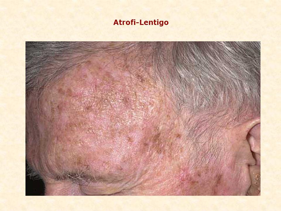 Atrofi-Lentigo