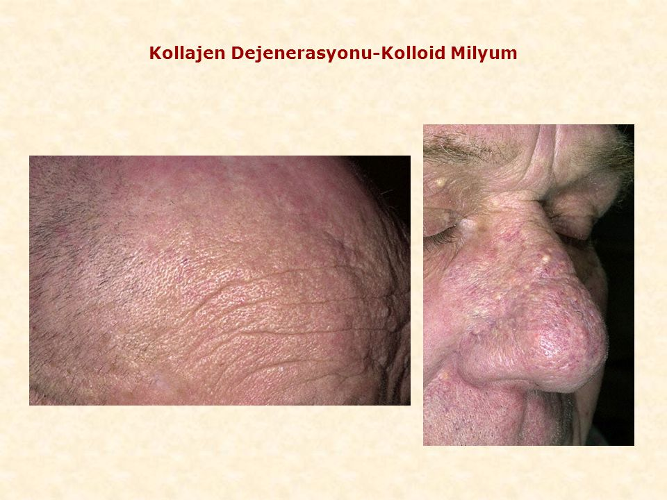 Kollajen Dejenerasyonu-Kolloid Milyum