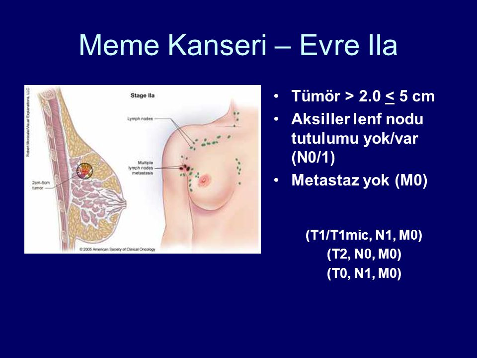 Meme Kanseri – Evre IIa •Tümör > 2.0 < 5 cm •Aksiller lenf nodu tutulumu yok/var (N0/1) •Metastaz yok (M0) (T1/T1mic, N1, M0) (T2, N0, M0) (T0, N1, M0)