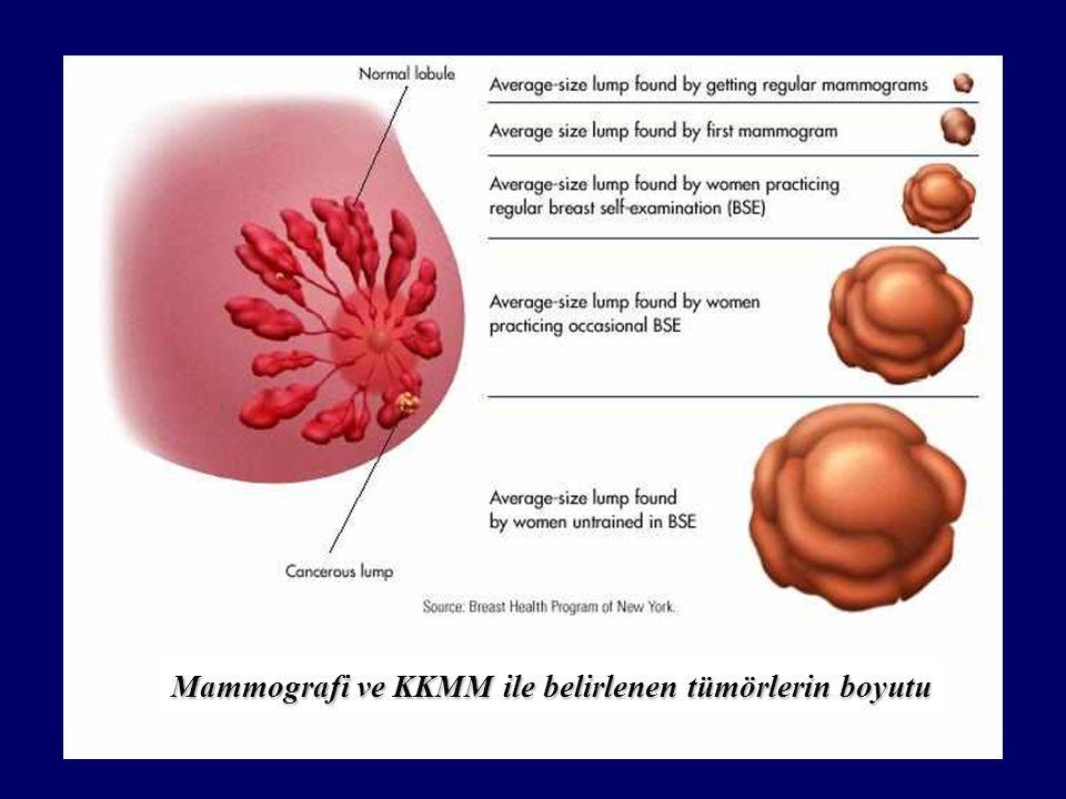 Mammografi ve KKMM ile belirlenen tümörlerin boyutu