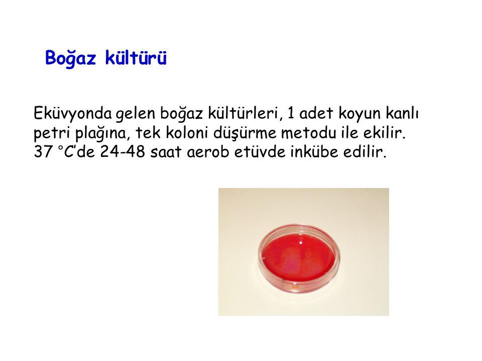 Kan kültürü Kan kültürü şişelerinin üzerinde cihazın okuduğu barkod, numunenin alındığı gün, saat yazılmış mı diye kontrol edilir.