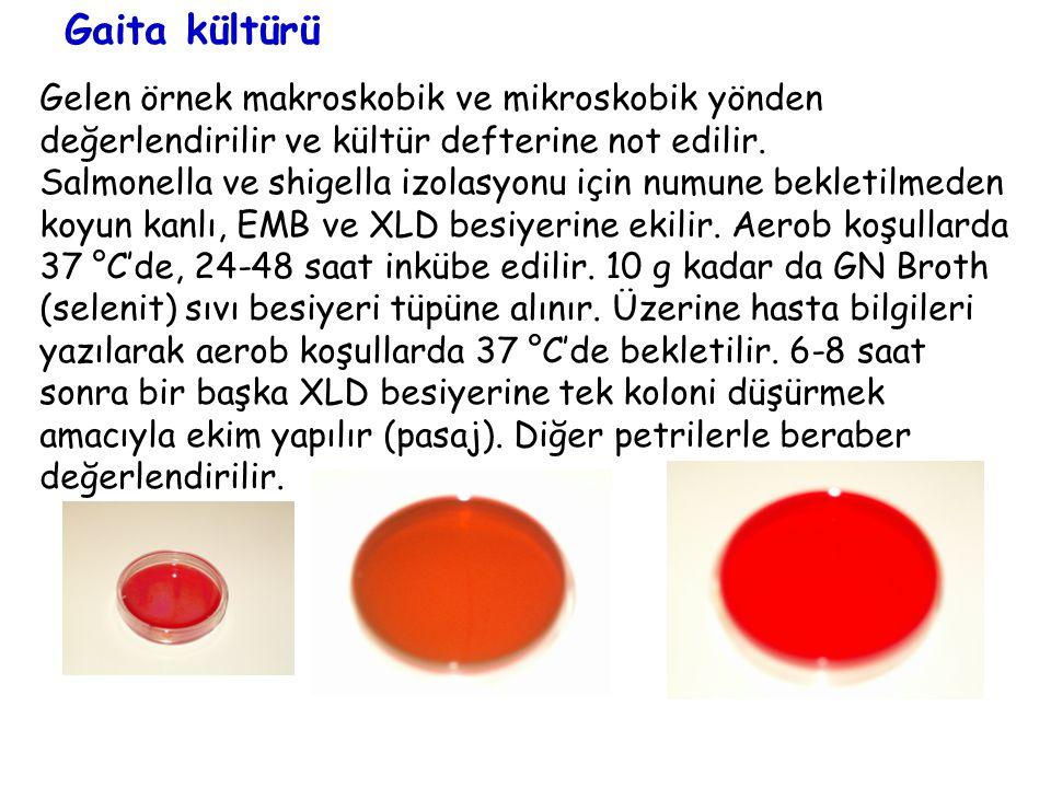 Gaita kültürü Gelen örnek makroskobik ve mikroskobik yönden değerlendirilir ve kültür defterine not edilir.