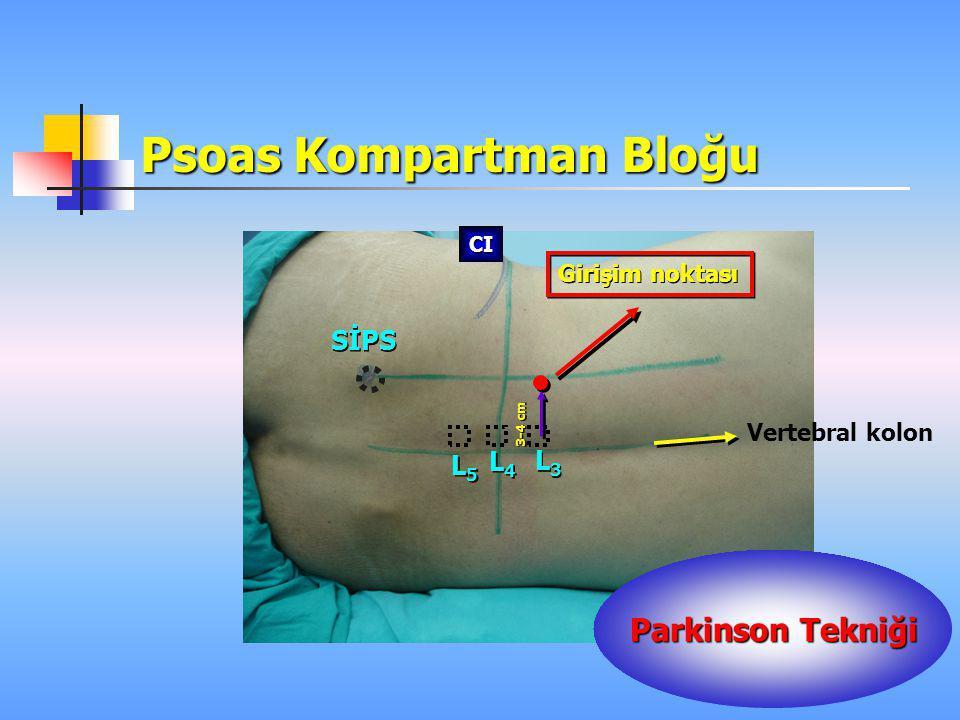 Psoas Kompartman Bloğu L4L4 L4L4 SİPS Vertebral kolon Girişim noktası L5L5 L5L5 L3L3 L3L3 3-4 cm CI Parkinson Tekniği