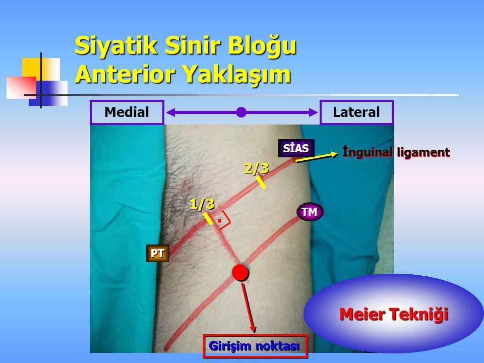 Siyatik Sinir Bloğu Anterior Yaklaşım Girişim noktası 1/3 2/3 MedialLateral İnguinal ligament TM SİAS PT. Meier Tekniği