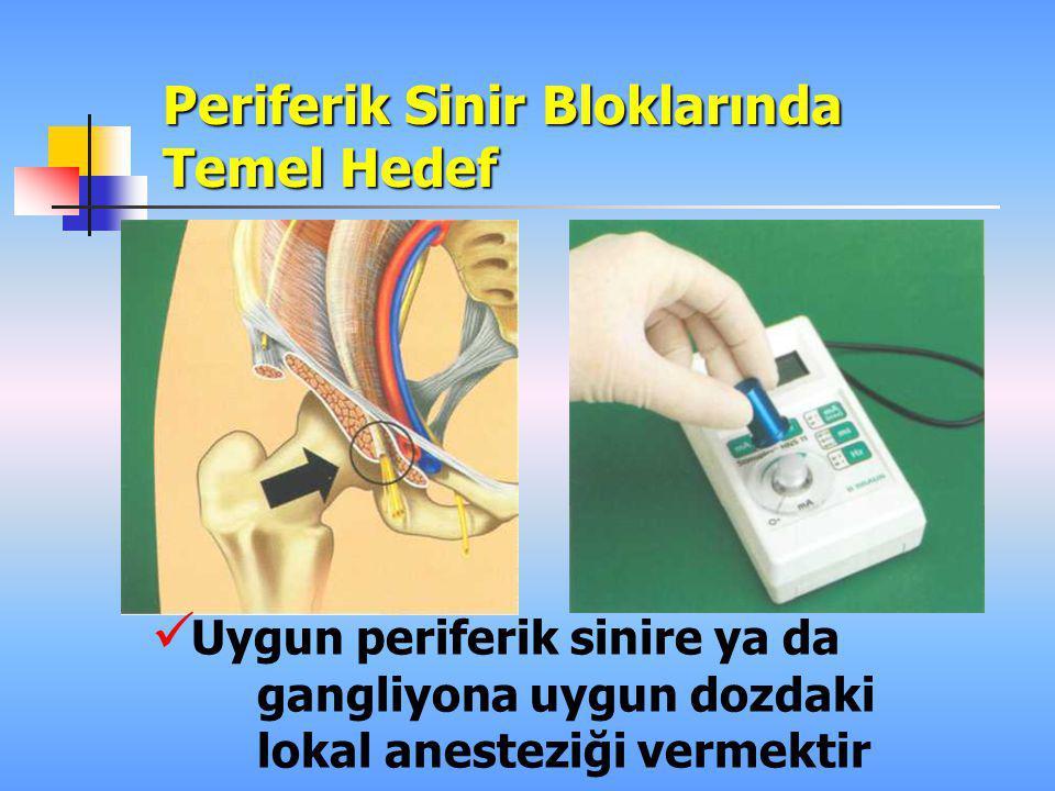 Periferik Sinir Bloklarında Kullanılan Teknikler Parezi-parestezi Transarteriyal Sinir stimülasyonu Sinir stimülasyonu+ US Sinir haritalaması + Sinir stimülasyonu Percutaneous electrode guidance (PEG)