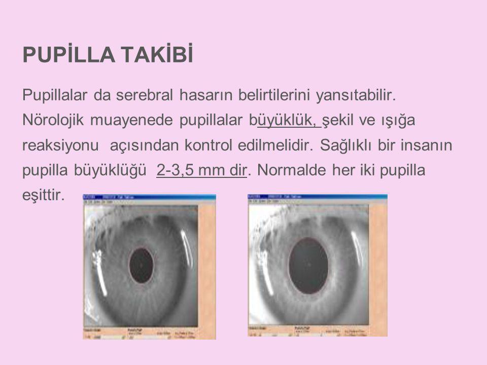 PUPİLLA TAKİBİ Pupillalar da serebral hasarın belirtilerini yansıtabilir. Nörolojik muayenede pupillalar büyüklük, şekil ve ışığa reaksiyonu açısından