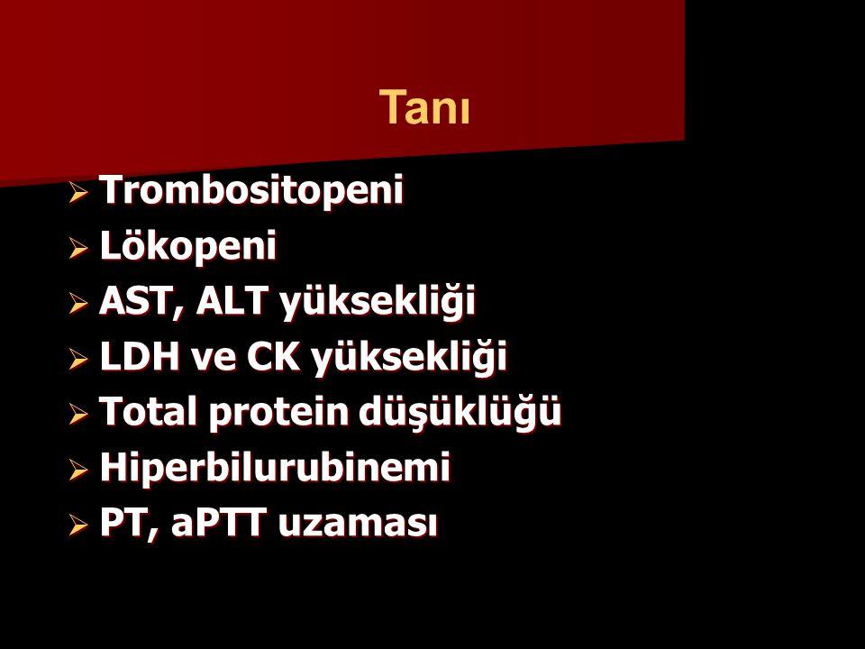  Trombositopeni  Lökopeni  AST, ALT yüksekliği  LDH ve CK yüksekliği  Total protein düşüklüğü  Hiperbilurubinemi  PT, aPTT uzaması Tanı