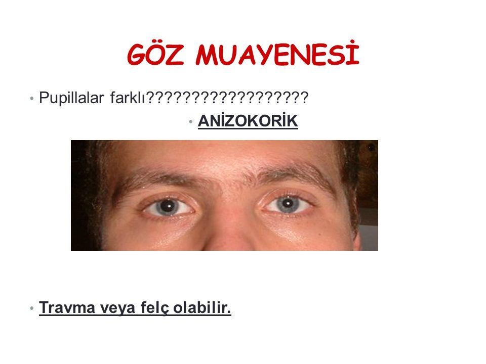 GÖZ MUAYENESİ • Pupillalar farklı?????????????????? • ANİZOKORİK • Travma veya felç olabilir. anizokorik