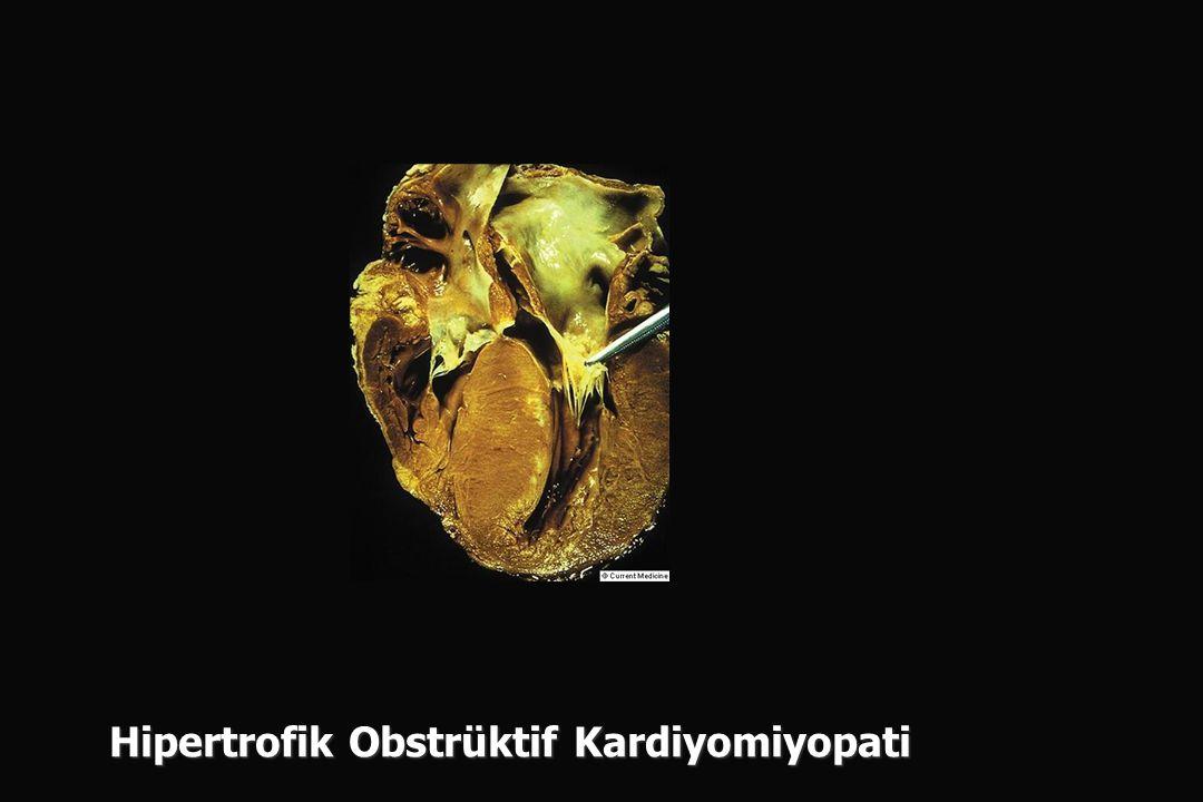 Hipertrofik Obstrüktif Kardiyomiyopati
