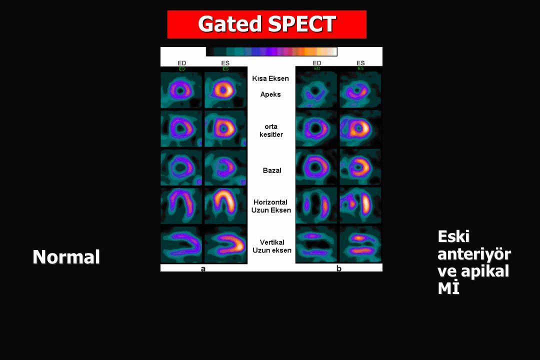 Gated SPECT Normal Eski anteriyör ve apikal Mİ