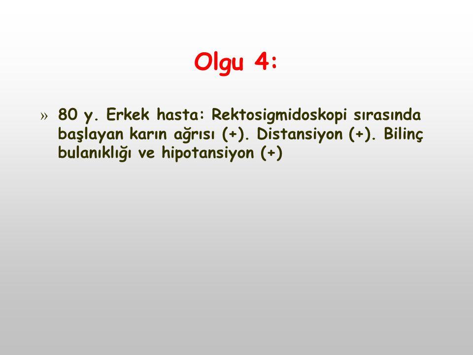 Olgu 4: » 80 y.Erkek hasta: Rektosigmidoskopi sırasında başlayan karın ağrısı (+).