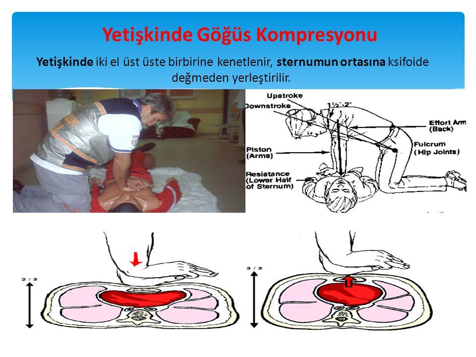 Yetişkinde iki el üst üste birbirine kenetlenir, sternumun ortasına ksifoide değmeden yerleştirilir. 28 Yetişkinde Göğüs Kompresyonu
