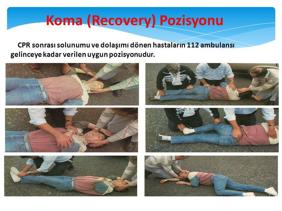 36 Koma (Recovery) Pozisyonu Solunum ve dolaşım var, bilinç kapalı, travma yok. CPR sonrası solunumu ve dolaşımı dönen hastaların 112 ambulansı gelinc
