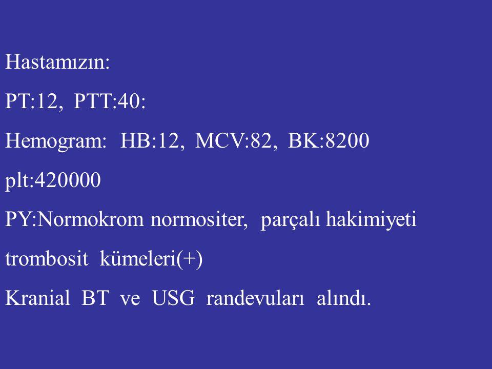 Hastamızın: PT:12, PTT:40: Hemogram: HB:12, MCV:82, BK:8200 plt:420000 PY:Normokrom normositer, parçalı hakimiyeti trombosit kümeleri(+) Kranial BT ve