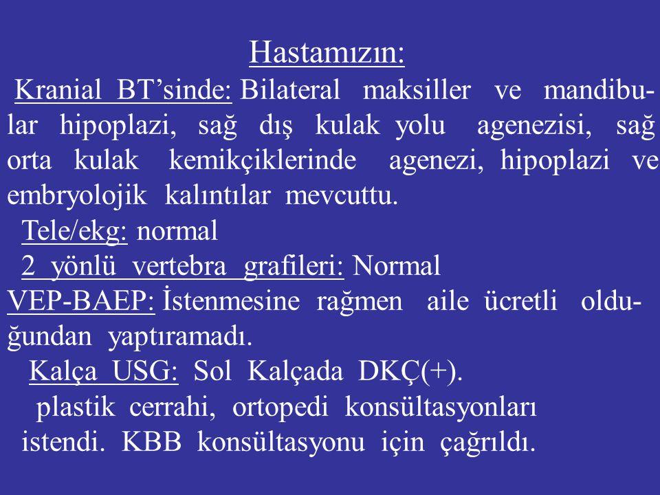 Hastamızın: Kranial BT'sinde: Bilateral maksiller ve mandibu- lar hipoplazi, sağ dış kulak yolu agenezisi, sağ orta kulak kemikçiklerinde agenezi, hip