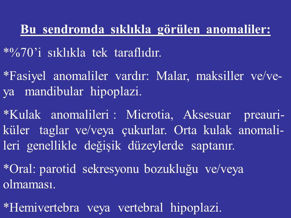 Bu sendromda sıklıkla görülen anomaliler: *%70'i sıklıkla tek taraflıdır. *Fasiyel anomaliler vardır: Malar, maksiller ve/ve- ya mandibular hipoplazi.