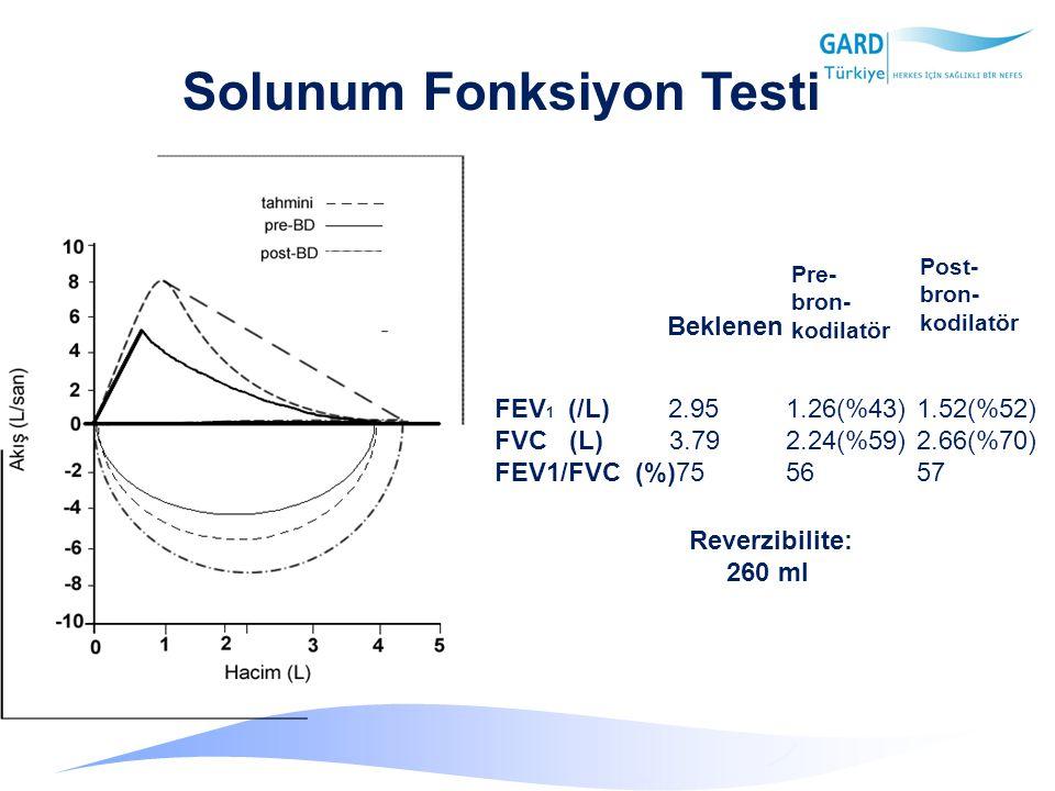 Solunum Fonksiyon Testi Pre- bron- kodilatör Post- bron- kodilatör FEV 1 (/L) 2.95 1.26(%43)1.52(%52) FVC (L) 3.79 2.24(%59)2.66(%70) FEV1/FVC (%)75 5657 Beklenen Reverzibilite: 260 ml