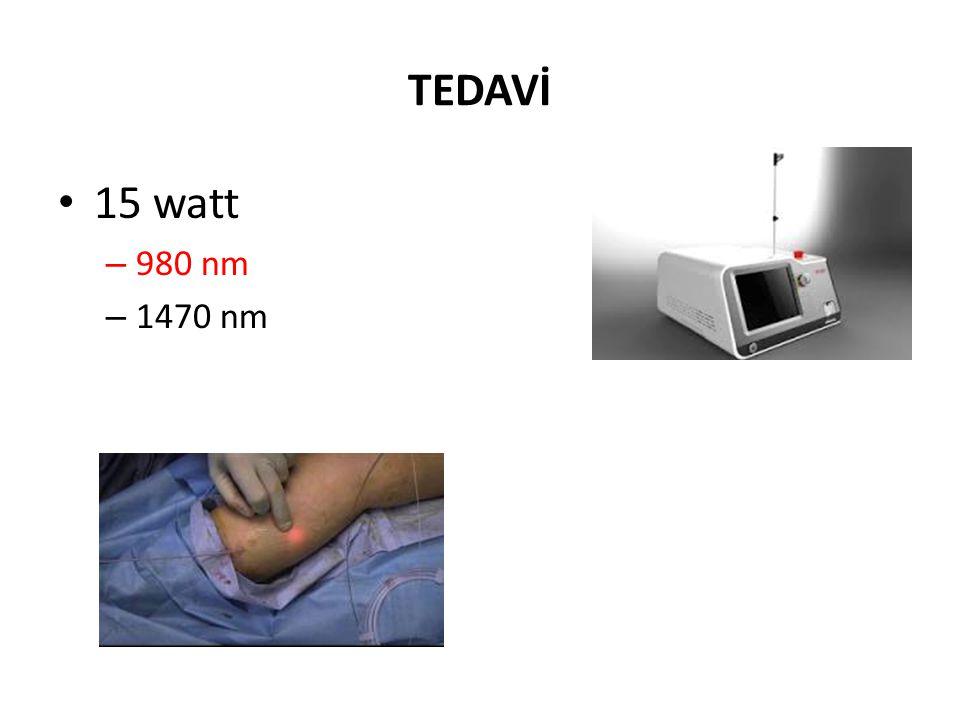 TEDAVİ • 15 watt – 980 nm – 1470 nm