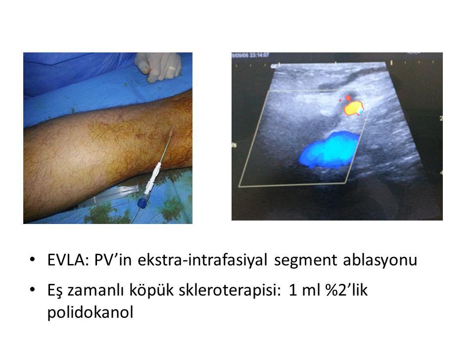 • EVLA: PV'in ekstra-intrafasiyal segment ablasyonu • Eş zamanlı köpük skleroterapisi: 1 ml %2'lik polidokanol