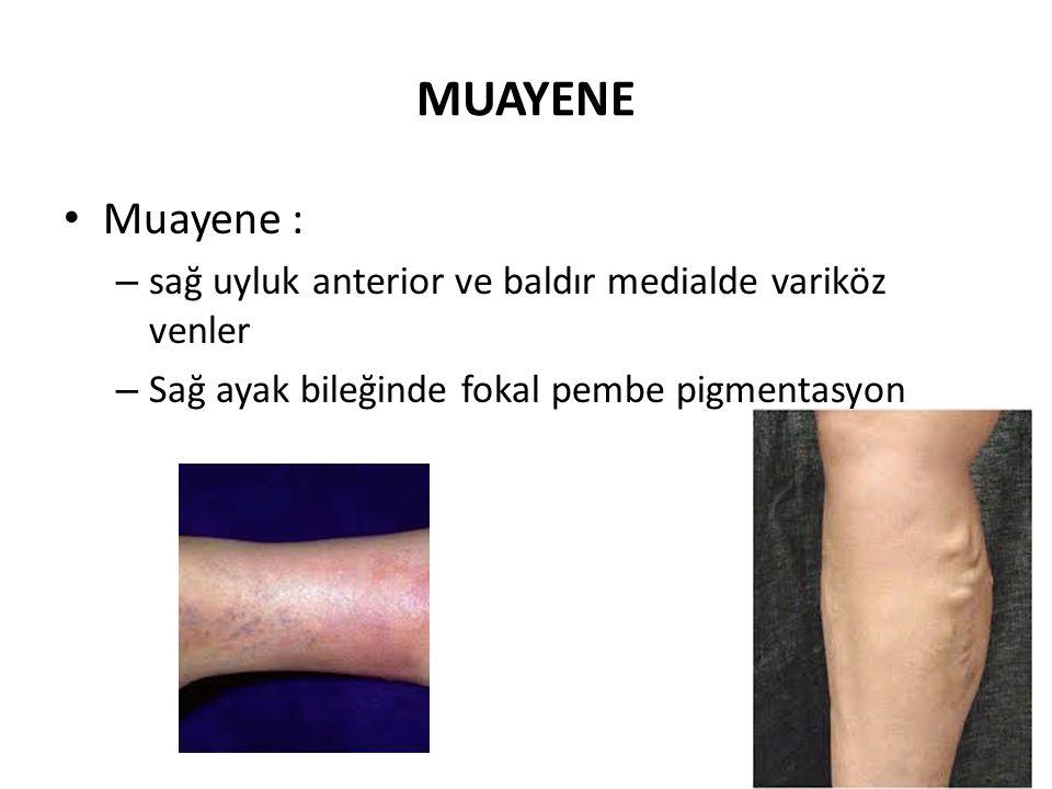 MUAYENE • Muayene : – sağ uyluk anterior ve baldır medialde variköz venler – Sağ ayak bileğinde fokal pembe pigmentasyon