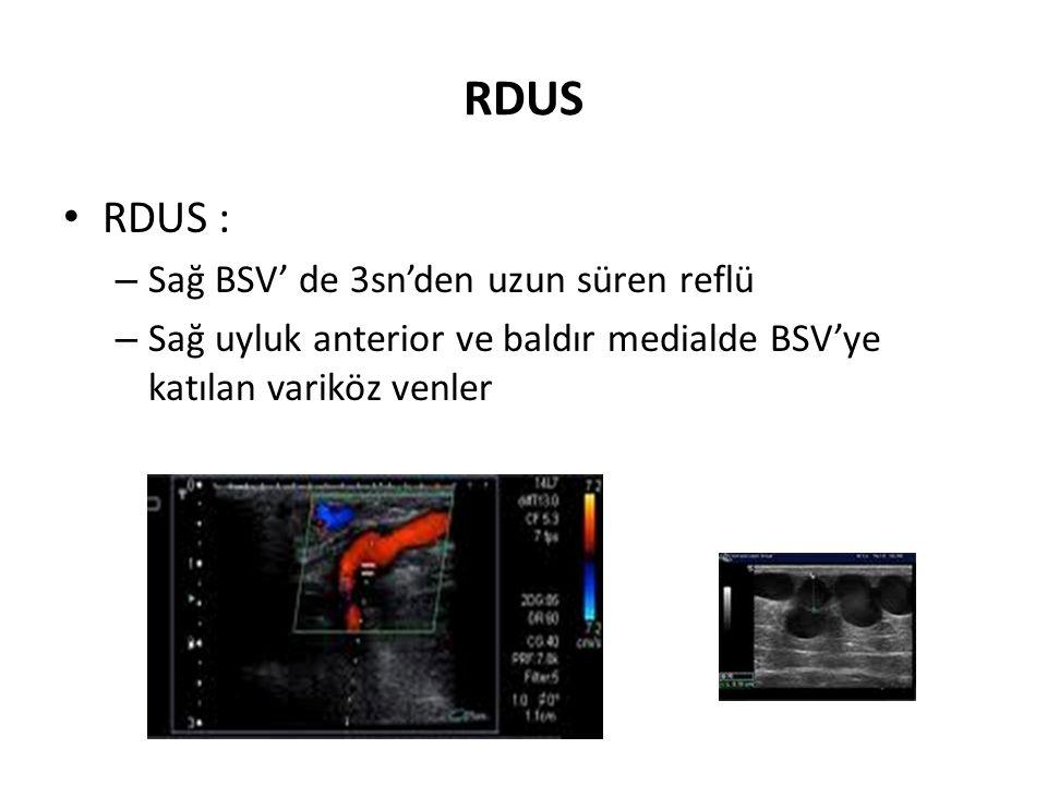 RDUS • RDUS : – Sağ BSV' de 3sn'den uzun süren reflü – Sağ uyluk anterior ve baldır medialde BSV'ye katılan variköz venler