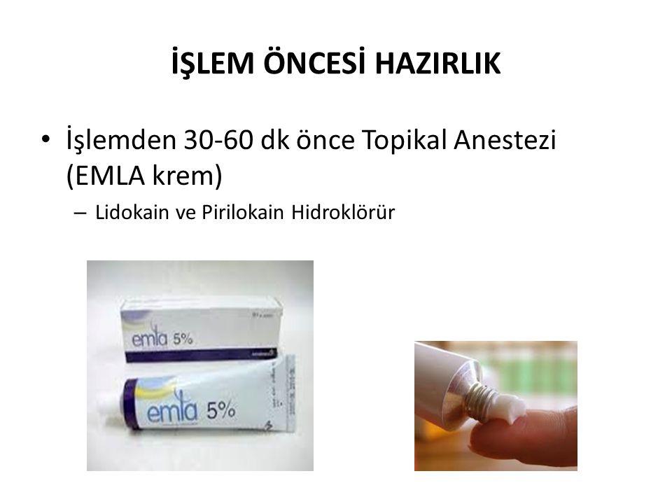 İŞLEM ÖNCESİ HAZIRLIK • İşlemden 30-60 dk önce Topikal Anestezi (EMLA krem) – Lidokain ve Pirilokain Hidroklörür
