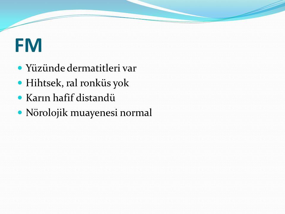 FM  Yüzünde dermatitleri var  Hihtsek, ral ronküs yok  Karın hafif distandü  Nörolojik muayenesi normal