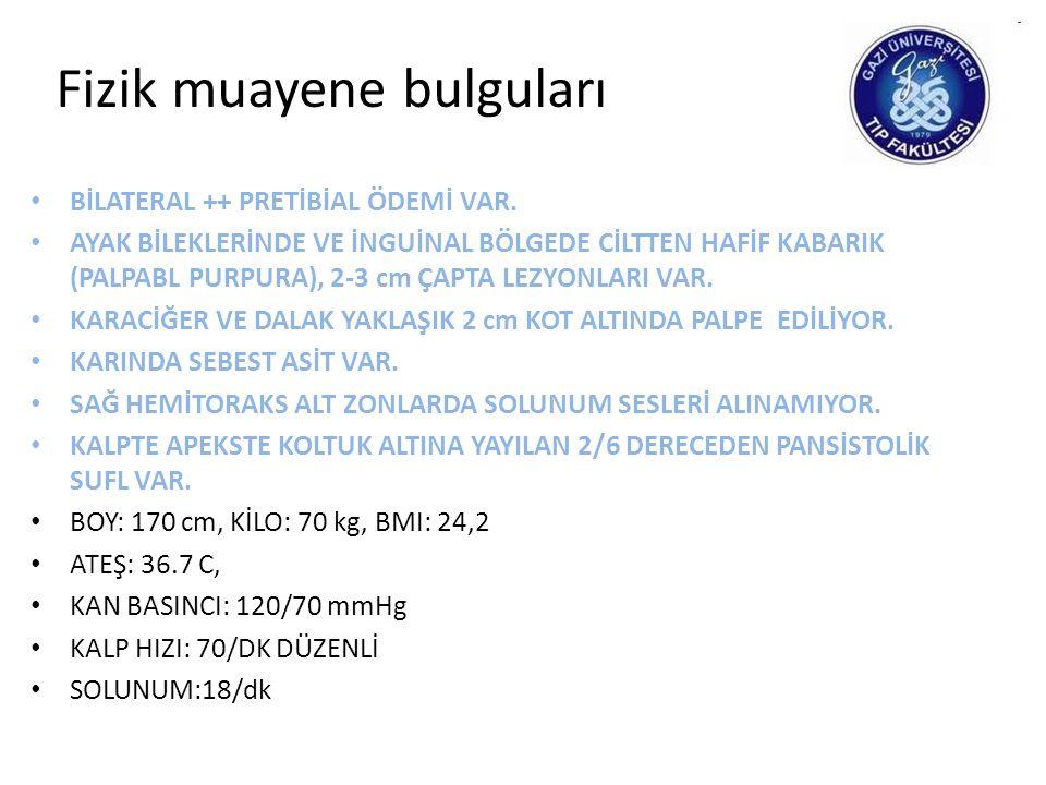 Laboratuar bulguları • Hg: 11.6, MCV:80, PLT:101.000/mm3 • BK/NEU: 4800/3700 • BİYOKİMYA: T.BİL / D.BİL: 0.8/0.1LDH/ÜA: 256/7.26 BUN/CRE: 31.7/1.55 T.PROTEİN/ALBÜMİN: 3.83/2.2 CA/P: 10/3.1NA/K: 141/4.62 PTH: 110.3 TSH: 1.75 ESR: 23 CRP: 8.9 T.KOL: 175 TG: 116 LDL-K: 119 HDL-K: 33 VIT B12: 197 (187-883) FOLİK ASİT: 2.3 (3.1-20.5) FE/TDBK: 16/137 FERRİTİN: 230 HAPTOGLOBULİN: 215 (30-200) İNDİREKT/DİREKT COOMBS TESTİ: NEG/NEG HOMOSİSTEİN: 20 (5-14)