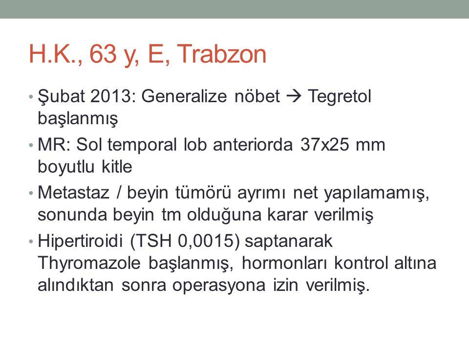 H.K., 63 y, E, Trabzon • Şubat 2013: Generalize nöbet  Tegretol başlanmış • MR: Sol temporal lob anteriorda 37x25 mm boyutlu kitle • Metastaz / beyin