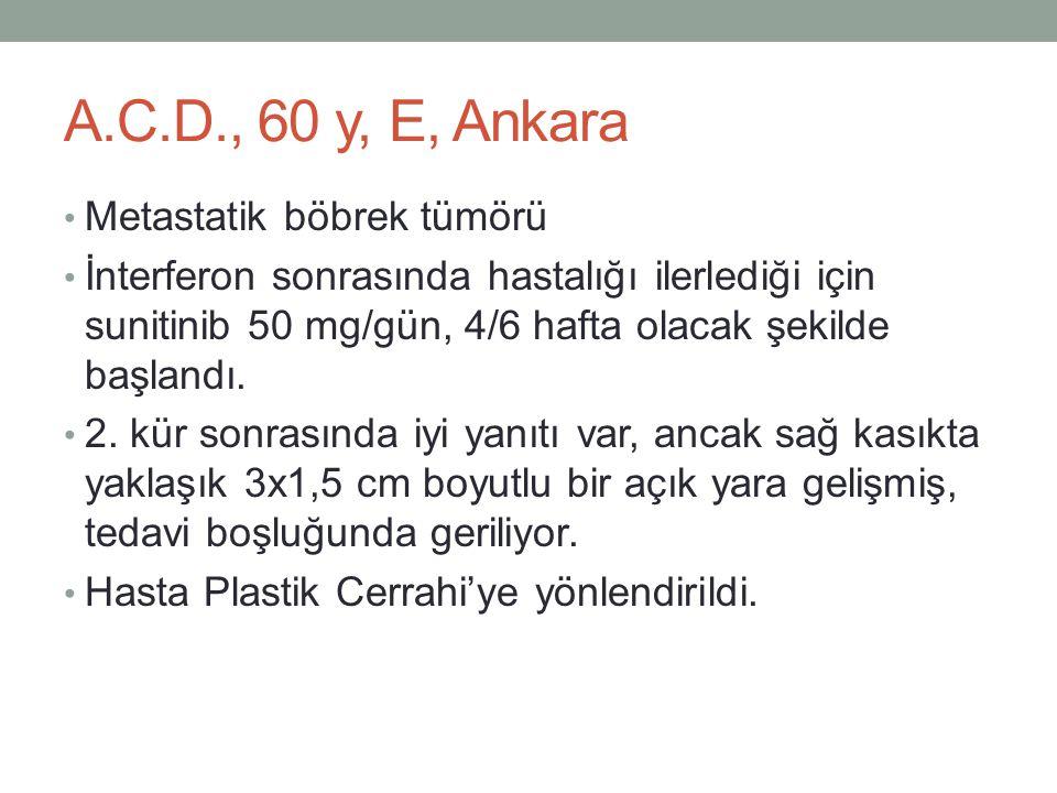 A.C.D., 60 y, E, Ankara • Metastatik böbrek tümörü • İnterferon sonrasında hastalığı ilerlediği için sunitinib 50 mg/gün, 4/6 hafta olacak şekilde baş