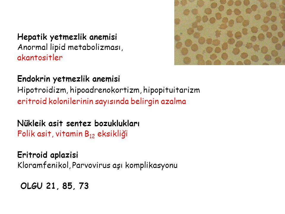 Hepatik yetmezlik anemisi Anormal lipid metabolizması, akantositler Endokrin yetmezlik anemisi Hipotroidizm, hipoadrenokortizm, hipopituitarizm eritro