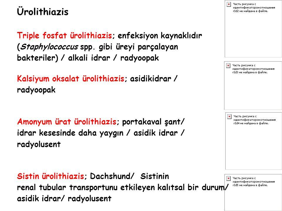 Ürolithiazis Triple fosfat ürolithiazis; enfeksiyon kaynaklıdır (Staphylococcus spp. gibi üreyi parçalayan bakteriler) / alkali idrar / radyoopak Kals