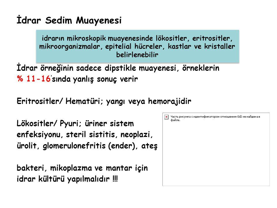 İdrar Sedim Muayenesi İdrar örneğinin sadece dipstikle muayenesi, örneklerin % 11-16 ' sında yanlış sonuç verir Eritrositler/ Hematüri; yangı veya hem